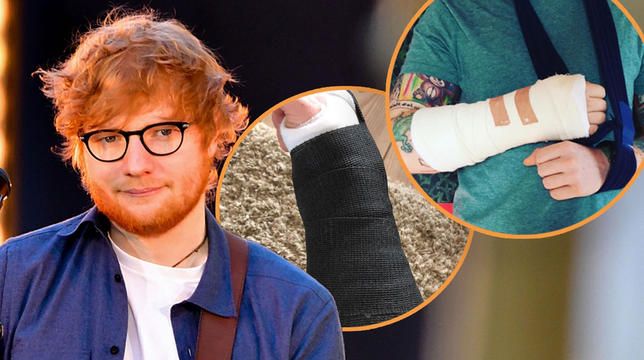 Ed Sheeran Forced To Cancel Divide Tour Dates As Extent Of Cycing Accident Inuries Revealed