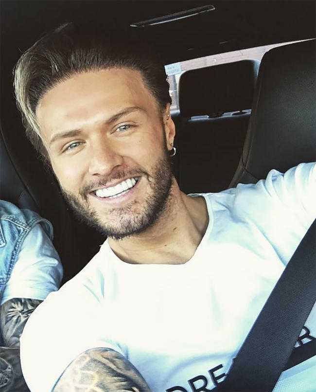 Geordie Shore's Kyle Christie compares his own jaw to Spongebob Squarepants