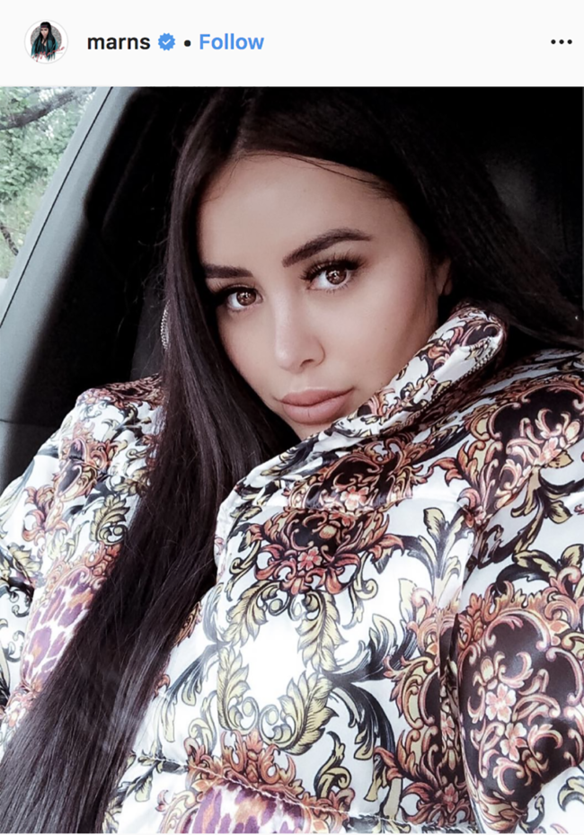 Marnie Simpson debuts botox injections and praises her face doctor
